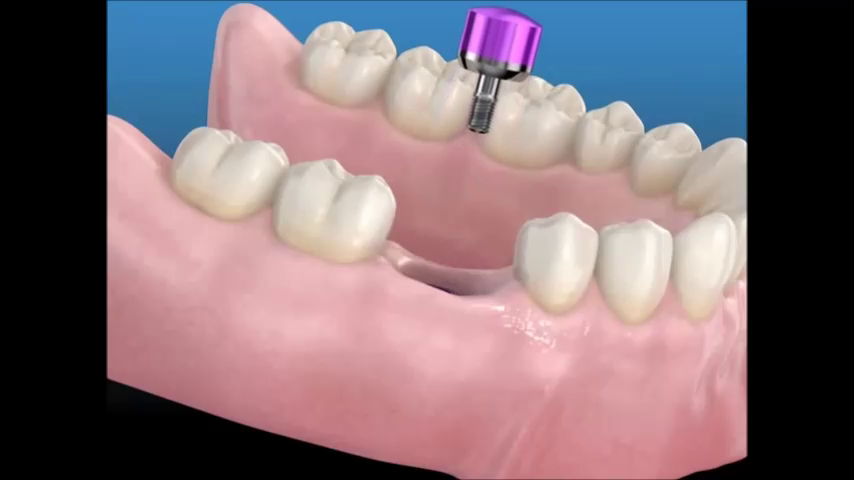 El implante dental (que es y que usos se le da)