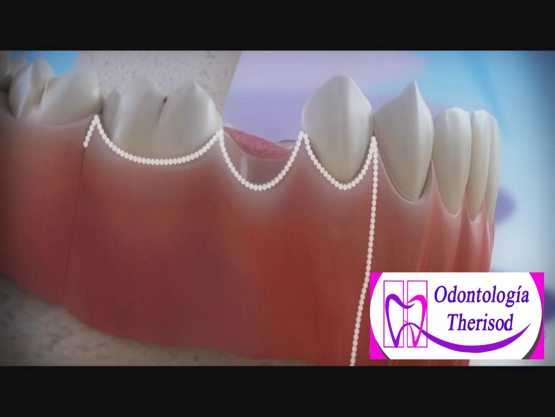 Therisod odontología