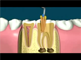 Endodoncia Gallo